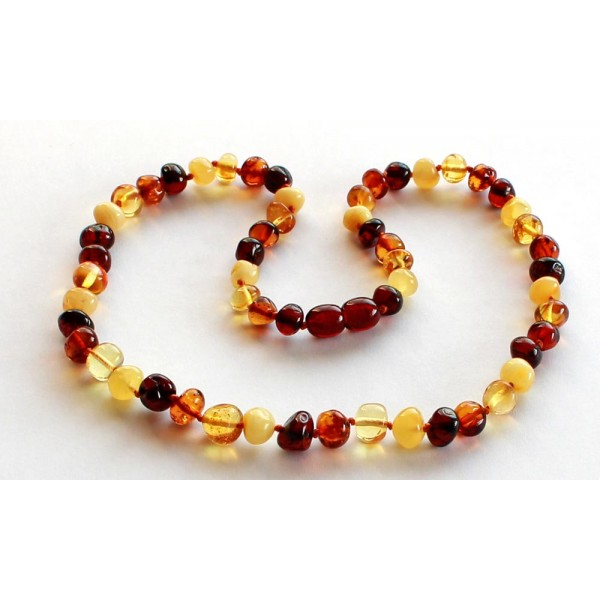 Baroque-Amber-Necklace